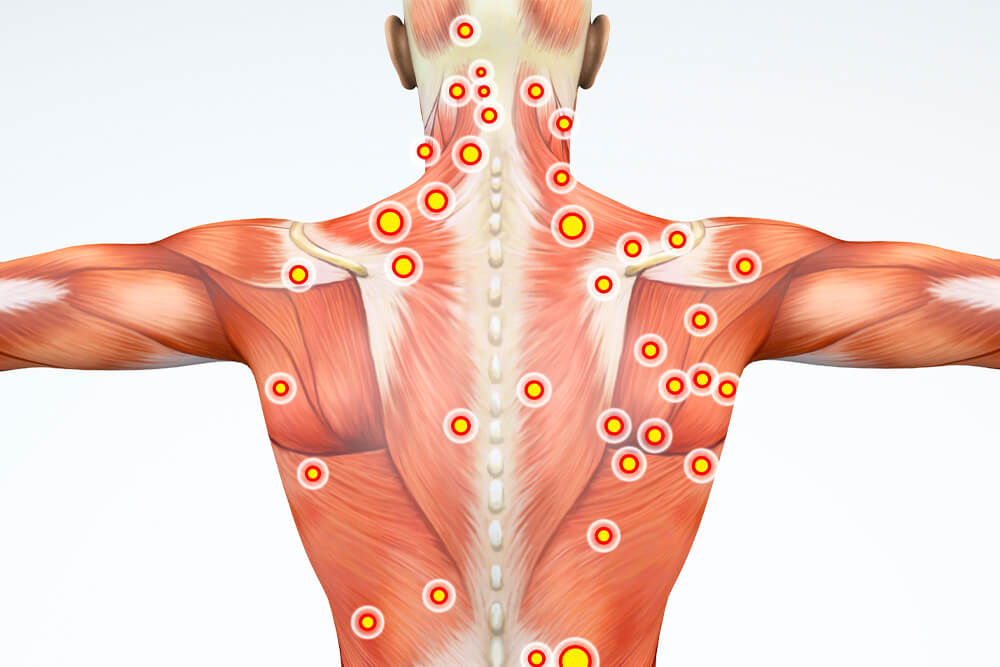totality-chiropractic-Muscle-Trigger-Point-Pain-Myofascial-Release-Therapy-dr-rich-totality-chiropractic-boca-raton
